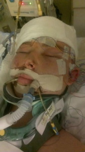 Ben Wolverton after accident - 451x800